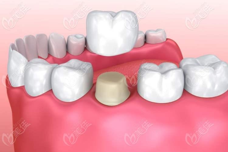 做过根管的牙能用几年