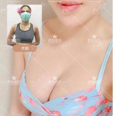 北京英煌丰胸怎么样?等距脂肪丰胸案例效果参考