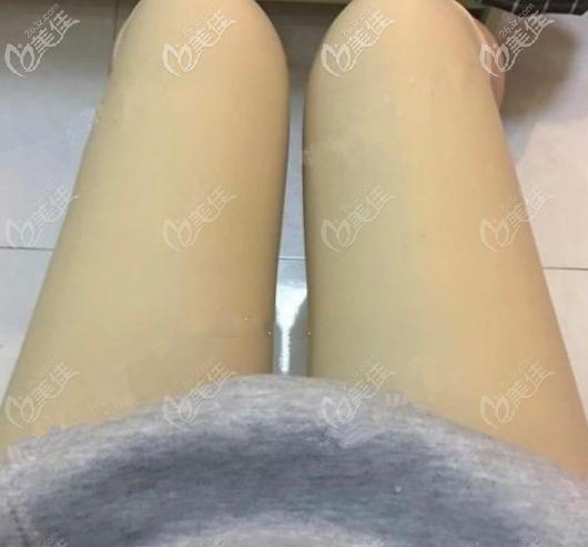 陈伟给我做大腿抽脂第3天