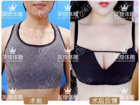北京英煌梁耀婵丰胸怎么样?她做的间联祖细胞微脂丰胸案例效果参考