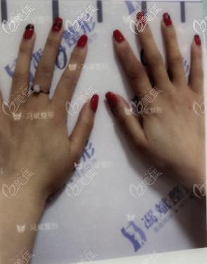 自体脂肪丰手指哪里能做?我在北京东方和谐做的脂肪丰手效果还挺柔美