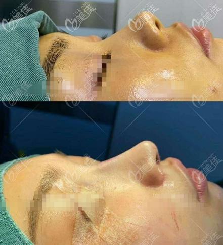 重庆美莱鼻整形好的医生李任美人鱼尾鼻案例