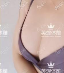 北京梁耀婵丰胸好吗?我找她做的精纯脂肪丰胸术后效果反馈给你