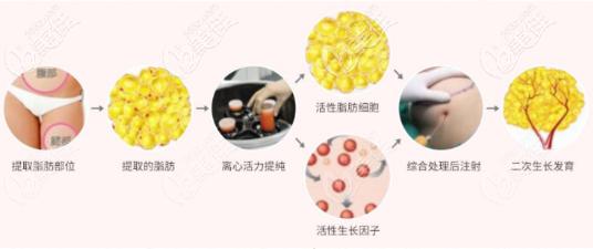 上海美莱袁玉坤自体脂肪填充怎么样?