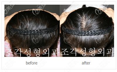 韩国雕刻后脑勺填充效果很自然