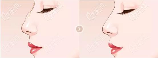 王建宇医生做鼻子的优势2