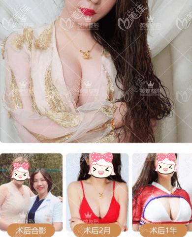 北京英煌赵丹杨院长自体脂肪丰胸案例效果参考