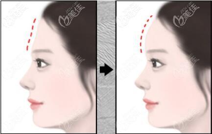 脸部自体脂肪移植填充额头前后效果对比照