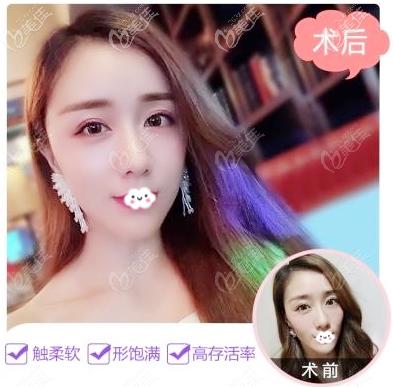广州美莱张毓医生脂肪填充案例