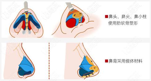 朱家旭肋骨鼻的技术特点