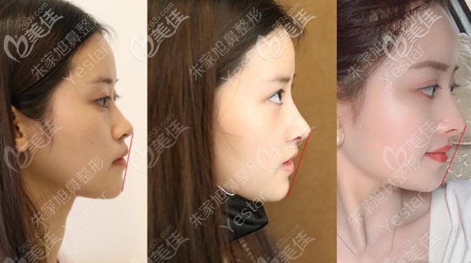 重庆艺星朱家旭半肋软骨隆鼻的案例效果图