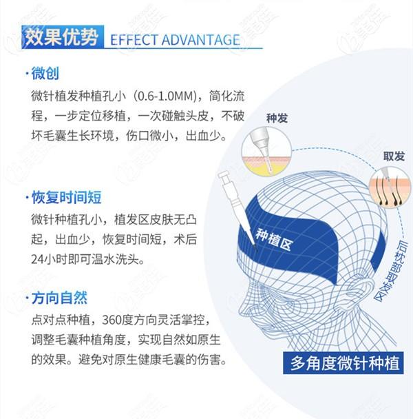 微针植发技术的效果优势