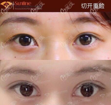 杏林房红超双眼皮开眼角真人案例对比照