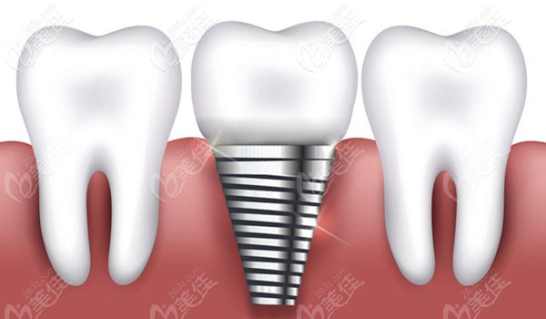 种植牙技术