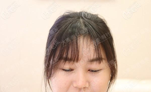 广州大麦微针植发靠谱实锤:不剃发微针植发1300单位的效果图来袭