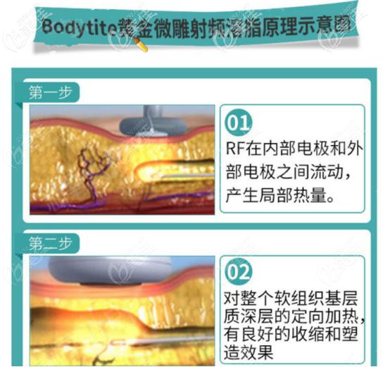 王俊河医生做吸脂手术不会出现皮肤松弛