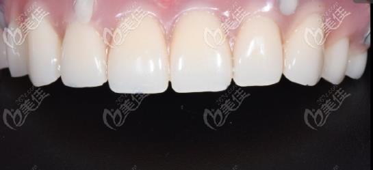 叔叔表示:上半口牙全部缺失,植入6颗植体后终于能啃排骨了