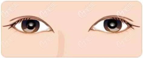 沈阳创美荟边志超做双眼皮怎么样