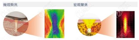 7d聚拉提和热玛吉的区别技术之间有差异