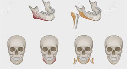 颌面修复手术