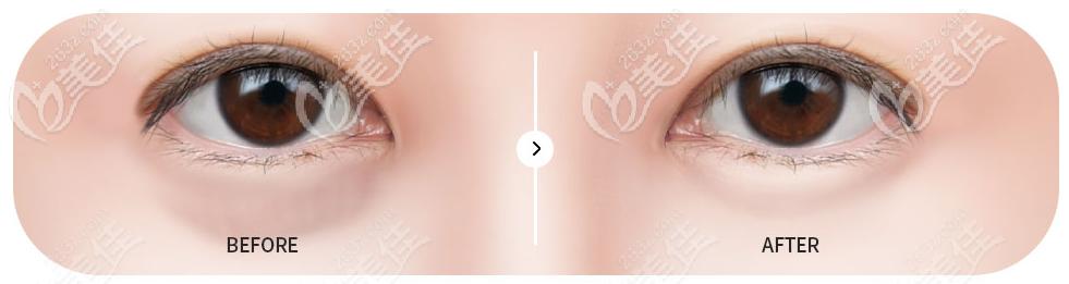 高韩雄院长做的眼底脂肪排列技术也很厉害