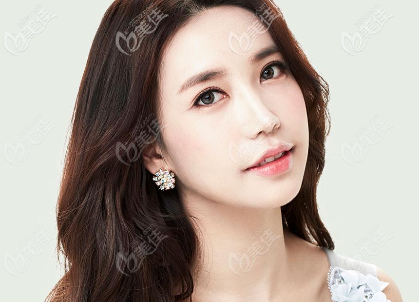 韩国大眼睛整形医院高韩雄做的双眼皮效果怎么样