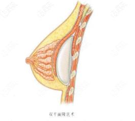 双平面假体隆胸植入层次示意图
