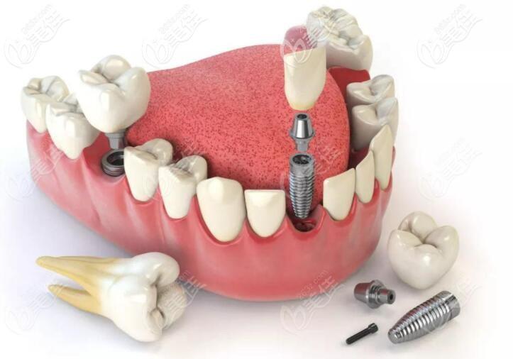 种植牙的结构分布