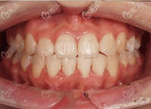 牙齿中度拥挤做矫正时并非都要拔牙,他戴陶瓷半隐形牙套不到两年就ok