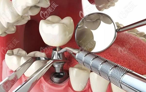 瑞思口腔数字化种植牙技术