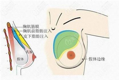 上海隆胸排名前三医院名单