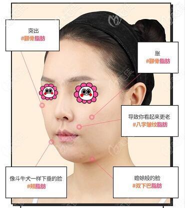 韩国原辰整形医院的无接触面部轮廓手术是什么技术