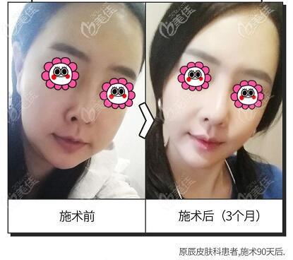 韩国原辰整形医院的无接触面部轮廓手术真人前后对比照