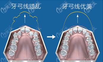 牙弓线错乱矫正对比