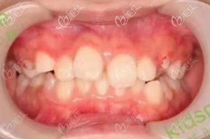 矫正半年的牙齿外观
