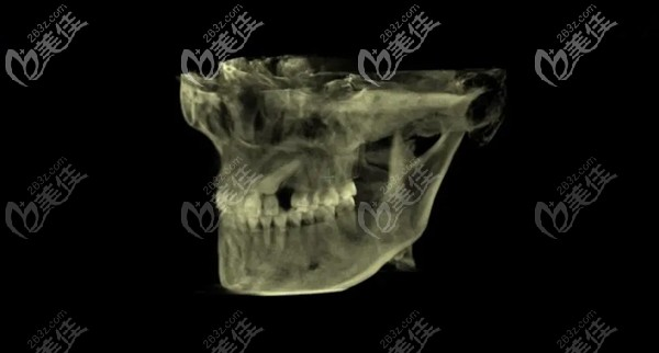 牙齿全景片