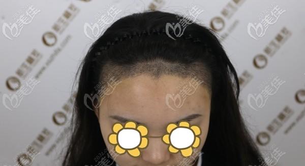 植发际线后10天的效果图