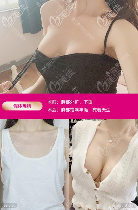 广州华美医疗美容整形医院郝永生术后照片1