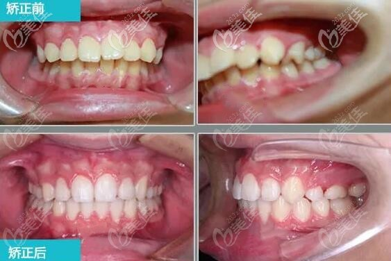 上颌前突下颌后缩牙齿矫正前后图片