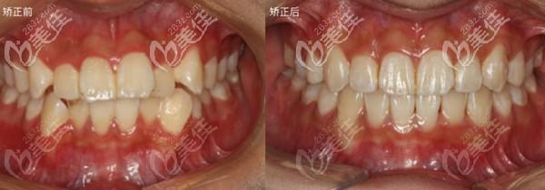 柳州蓝天口腔门诊部和黄宝术后照片1