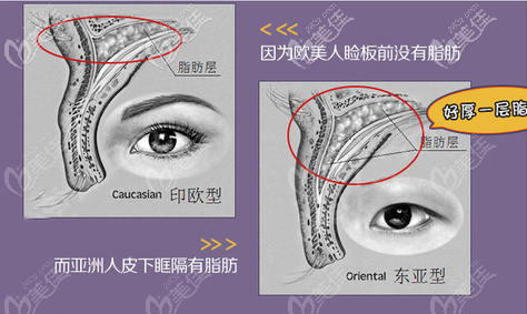 欧洲人和东方人的眼型对比