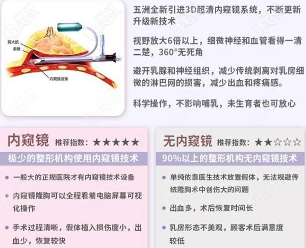 武汉五洲莱美内窥镜隆胸技术优势