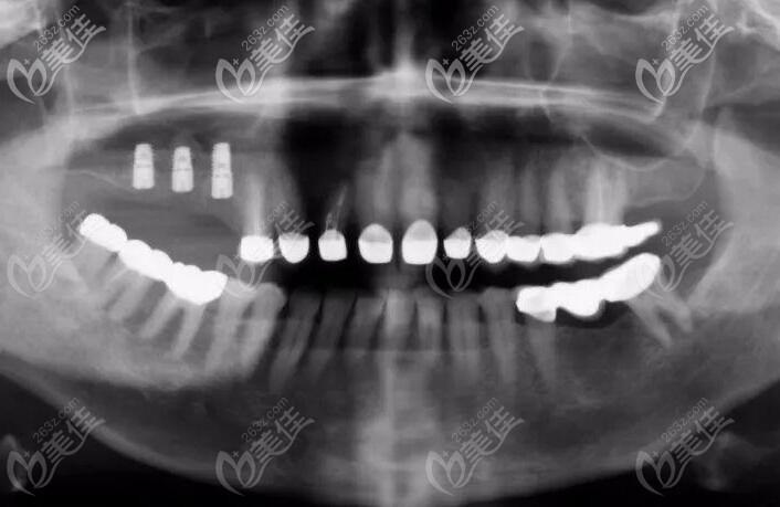 上颌窦提升X线片