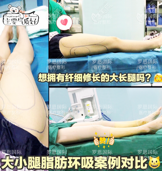东莞厚街罗恩整形大腿吸脂案例