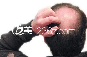 秃顶的原因是什么?秃顶能医治吗?